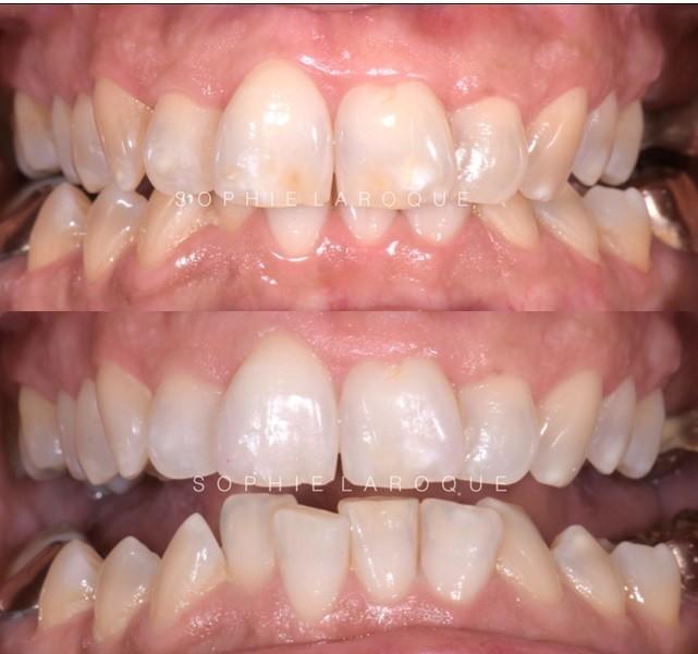 L'éclaircissement dentaire